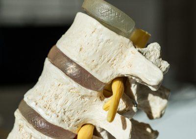 Modell einer Spinalkanal-Stenose, eingeklemmter Nerv durch Knochen in der Wirbelsäule